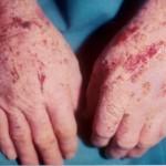 Актинический дерматит