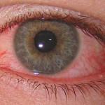 Аллергическй конъюнктивит