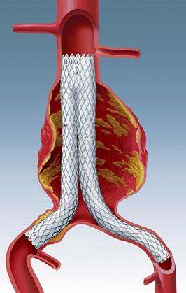 Аневризма стент графт