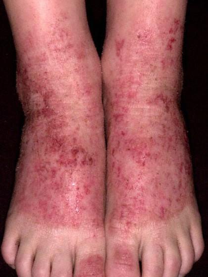 Сухой Псориаз Лечение