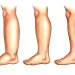 Отеки ноги