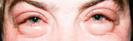 Отёки под глазами