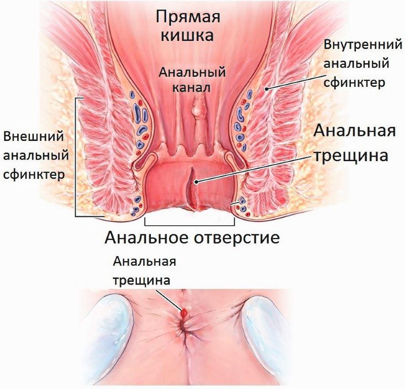 Таблетки при геморрое кровотечении на в
