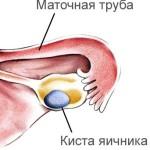 Фолликулярная киста яичника