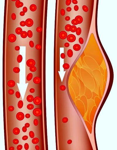 повышен холестерин глюкоза крови