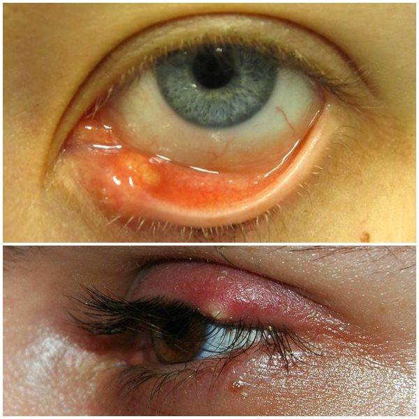 Лечение ячменя на глазу, использование капель, мазей и средств от гордеолума