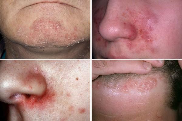 Себорейный дерматит на лице – лечение, причины