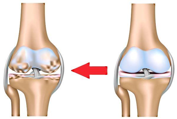 Артроз коленного сустава лечение