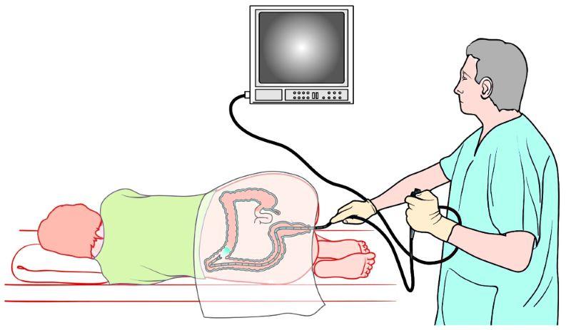 Подготовка к колоноскопии кишечника