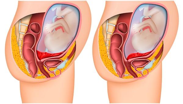 Секс и предлежание плаценты