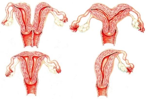 Матка седловидной формы и беременность