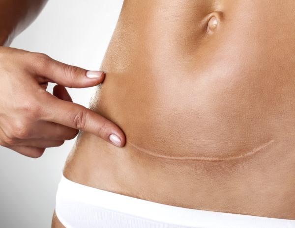 Кесарево сечение последствия и восстановление после операции