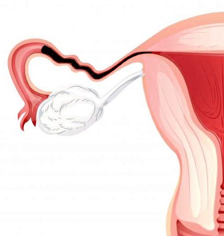 Непроходимость маточных труб лечение, симптомы, причины, народное лечение, диагностика