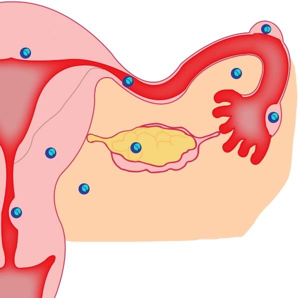Внематочная беременность симптомы, признаки разрыва трубы