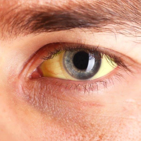 Желтуха симптомы, заболевания сопрвождающиеся желтухой