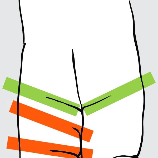 Дисплазия тазобедренного сустава у новорожденного (грудничка)