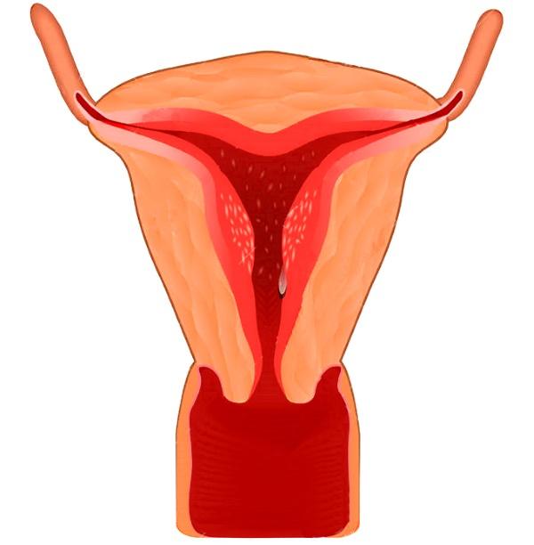 Гиперплазия эндометрия симптомы, лечение, прогноз, возможность беременности