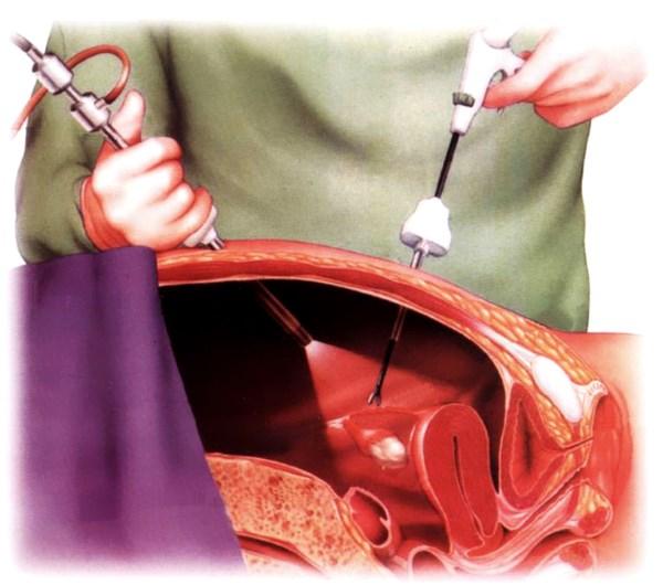 Лапароскопия кисты яичника подготовка, восстановление после операции