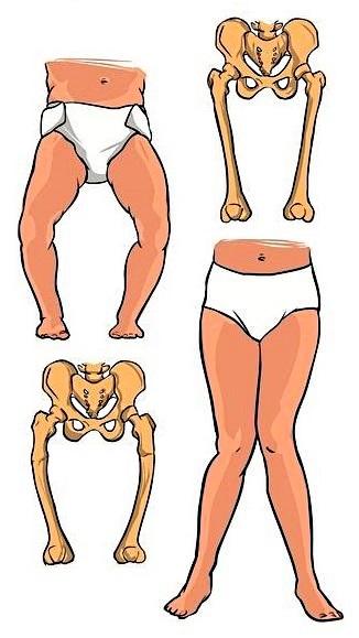 Признаки рахита у грудничков, лечение, причины, стадии рахита у детей
