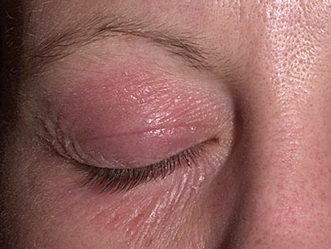 Алергія на шкірі навколо очей