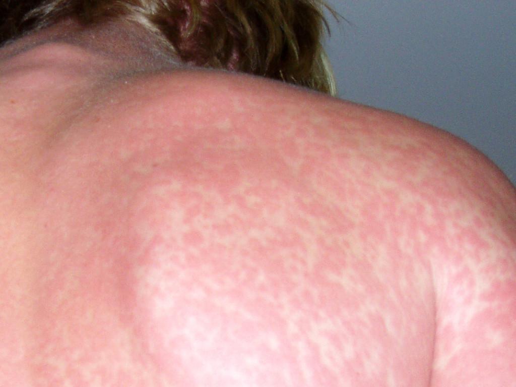 allergsun