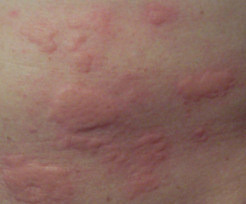 дерматит на ступнях у ребенка фото