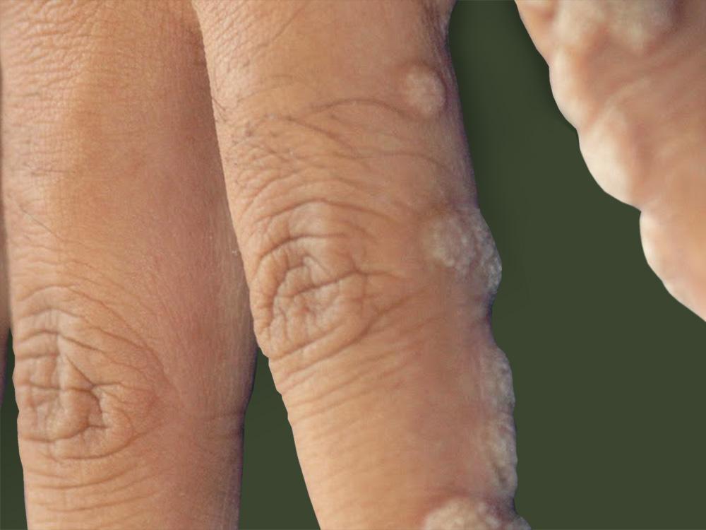 Папиллома человека у женщин лечение народными средствами