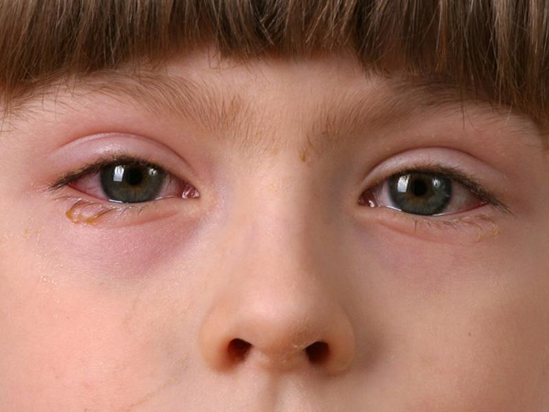Симптоми коньюктівіту у дітей