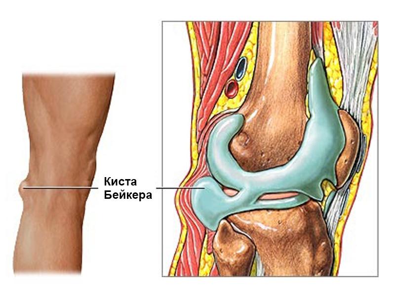 кисту бейкера коленного сустава как лучше лечить для каждой девушки