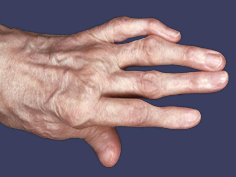 Симптоми артриту суглобів пальців рук