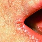 Лікування заїди в кутах рота