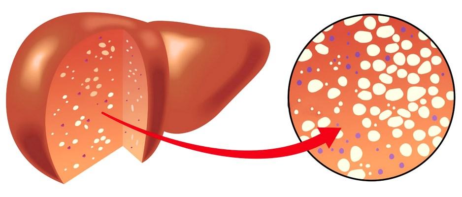 Причини і симптоми жирового гепатозу печінки