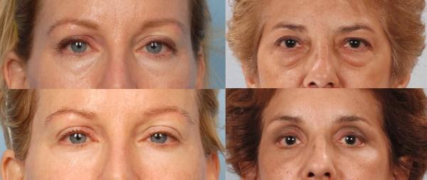 Причини мішків, набряків під очима, як позбавитися від набряків