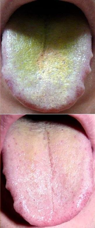 Причины коричневого, желтого налета на языке