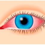 Вірусний кон'юнктивіт лікування, симптоми у дітей і дорослих150x150_4385