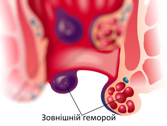 Зовнішній геморой лікування, мазі, свічки, креми, народні засоби