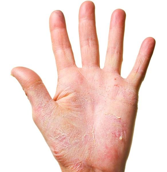 Чим лікувати екзему на руках лікування мазями, препаратами, народними засобами