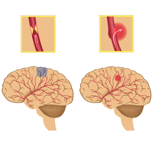 Лікування і наслідки інсульту лівого і правого боку