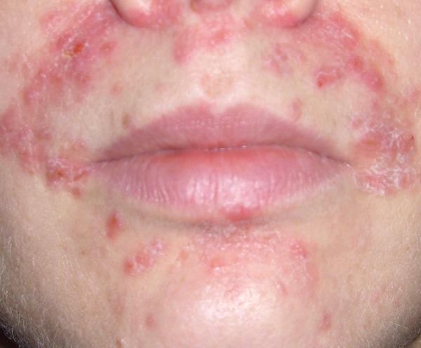 Лікування периорального дерматиту, симптоми, причини виникнення