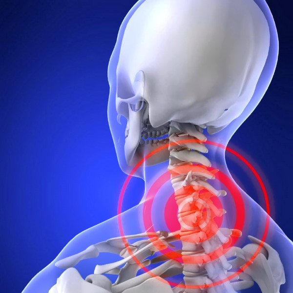 Как снять боль остеохондроза в шейном отделе