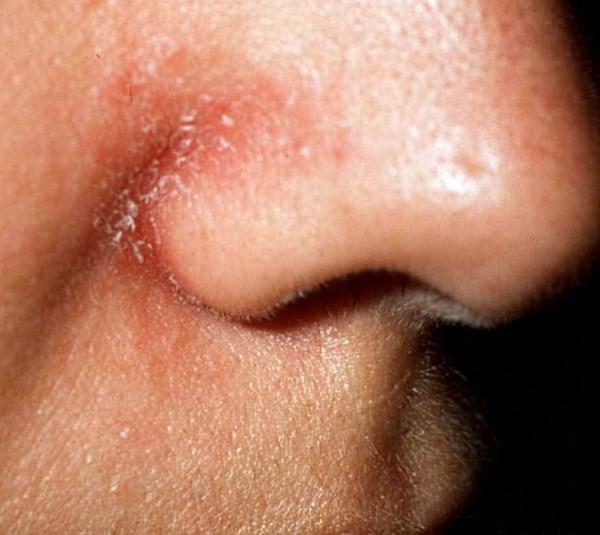 Себорейный дерматит на обличчі лікування, причини