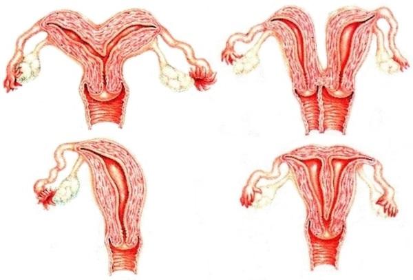 Сідлоподібна матка причини, зачаття і вагітність, симптоми та діагностика