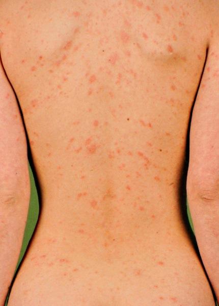 Симптоми, лікування рожевого лишаю у людини