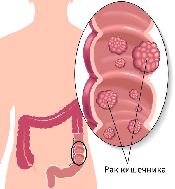 Симптоми раку кишечника, причини, діагностика, лікування, прогноз