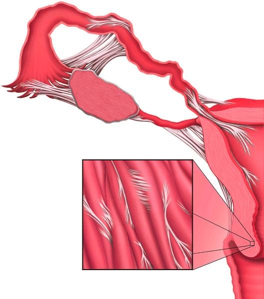 Спайки в малому тазу симптоми, лікування, спайки після кесаревого розтину