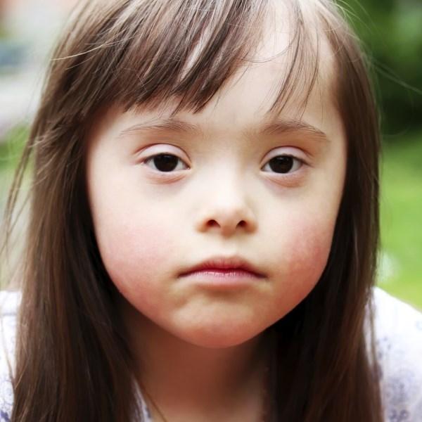 Синдром Дауна причини, ознаки, діагностика