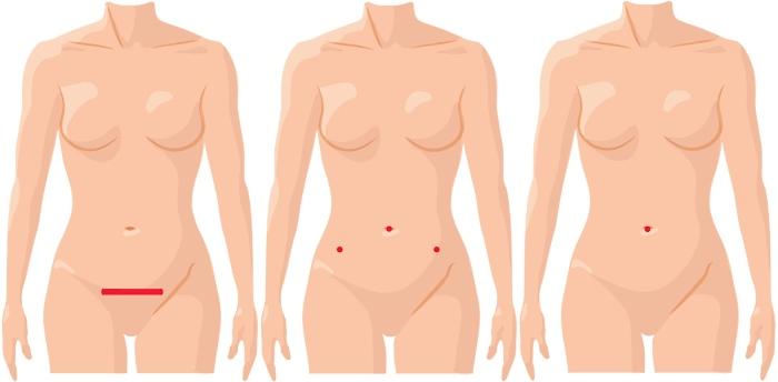 Ускладнення після операції видалення матки, наслідки ампутації матки з яєчниками